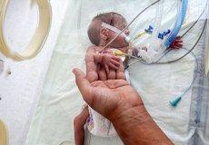 Турецкие медики выходили ребенка весом всего 660 грамм