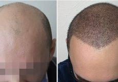 Турция – третья в мире страна, куда едут для трансплантации волос